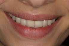 case 1 study veneers after