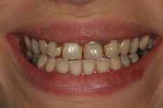 case 1 study veneers before