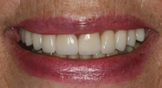 case 3 study veneers after