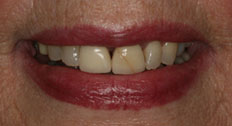 case 3 study veneers before